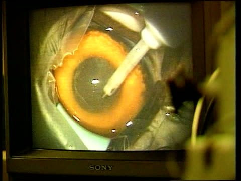 eye operation; itn herefordshire: eye: veterinary clinic: int gv operation to remove cataracts in progress laser directed onto owl's eye paul evans... - herefordshire bildbanksvideor och videomaterial från bakom kulisserna