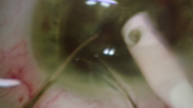 eye operation - lens optical instrument stock videos & royalty-free footage