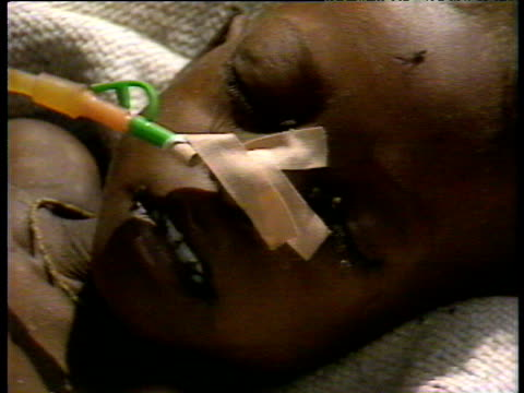 face of famine victim with tube in nose flies swarming ethiopian drought; jul 1984 - ethiopia stock videos & royalty-free footage