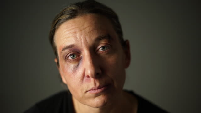 face of tortured woman