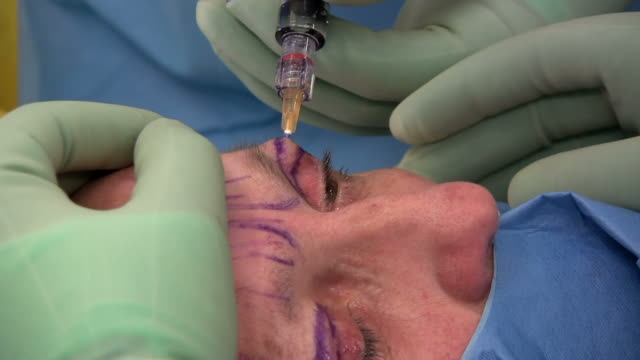 facelift operation, clip 17 of 24. - eyelid stock videos and b-roll footage