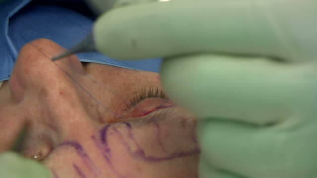 facelift operation, clip 21 of 24. the surgeon has removed a flap of skin from the eyelid and is now sewing the two edges together, which will give a tighter appearance. this is the blepharoplasty stage of the operation - eyelid stock videos and b-roll footage