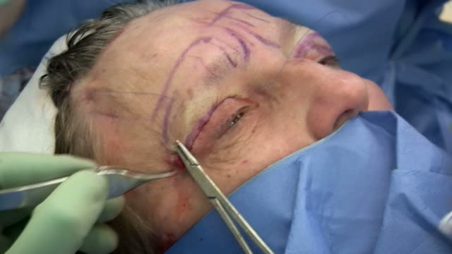 facelift operation, clip 22 of 24. the surgeon has removed a flap of skin from the eyelid and is now sewing the two edges together, which will give a tighter appearance. this is the blepharoplasty stage of the operation - eyelid stock videos and b-roll footage