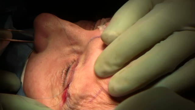 facelift operation, clip 24 of 24. the surgeon has removed a flap of skin from the eyelid and is now sewing the two edges together, which will give a tighter appearance. this is the blepharoplasty stage of the operation - eyelid stock videos and b-roll footage
