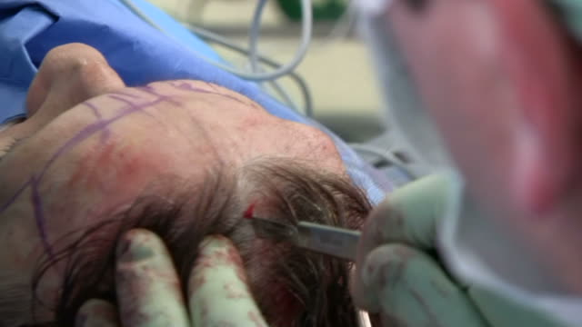 facelift operation, clip 6 of 24. the surgeon makes an incision in the patient's scalp, before using a cauteriser to seal the wound edges and prevent blood loss - plastic surgery stock videos and b-roll footage