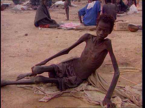 Famine revisited ITN LIB Emaciated people suffering during famine clapping and chanting Gaunt woman Woman sitting with limbs like sticks Thin child...
