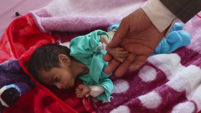 father holds the hand of his malnourished child while he receives treatment at a hospital on june 30, 2020 in sana'a, yemen. buffeted by five years... - yemen bildbanksvideor och videomaterial från bakom kulisserna