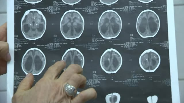 fears of spread of zika virus as parents struggle to cope; doctor talking to reporter sot various of brain scans of child with microcephaly held and... - virus zika video stock e b–roll