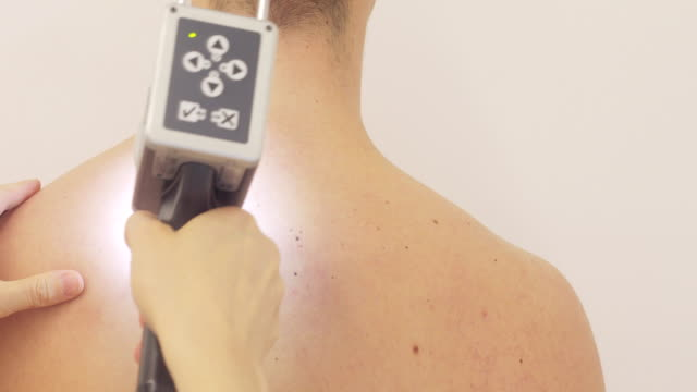 female dermatologist mole mapping on young man's back - mole skin stock videos and b-roll footage