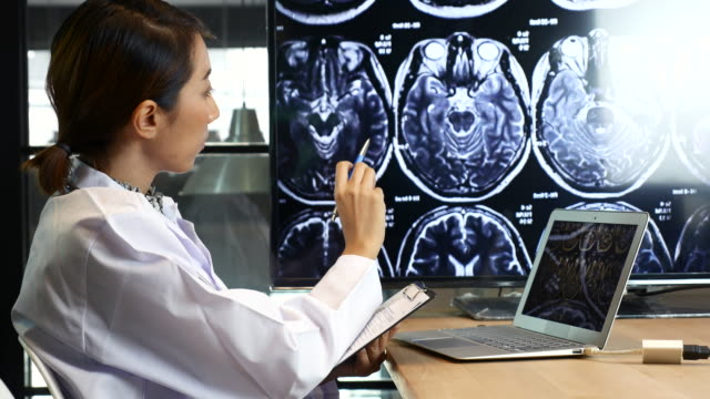 Female Doctor Analysis MRI brain scan on Display