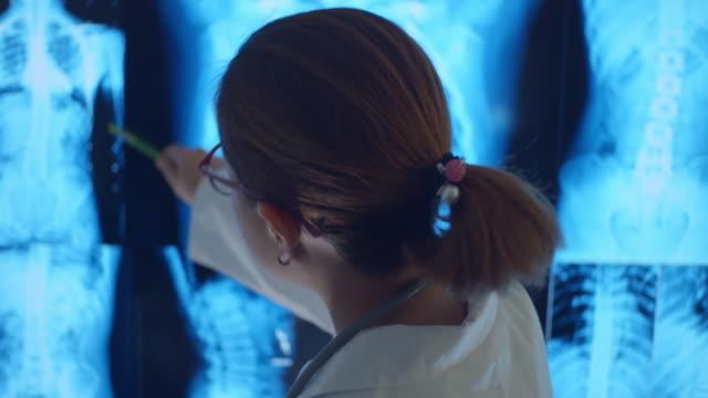 患者のレントゲン写真を調べる女性医師 - レントゲン点の映像素材/bロール