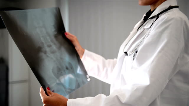 female doctor with x-ray - osteoporosis stock videos & royalty-free footage