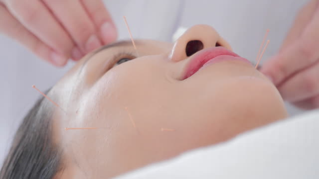 vídeos de stock e filmes b-roll de female physiotherapist is doing acupuncture on the face of a female patient.medical, science, technology, specialist, alternative medicine - acupuntura