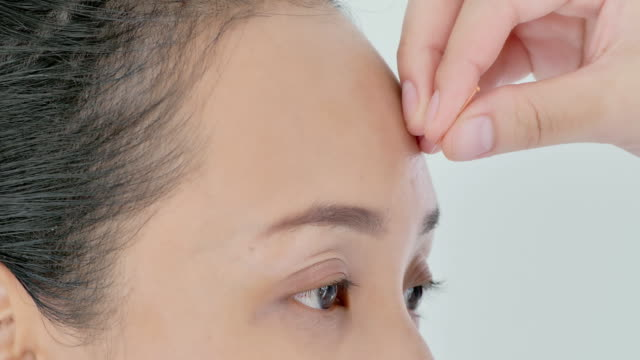 vídeos de stock e filmes b-roll de female physiotherapist is doing acupuncture on the forehead of a female patient.medical, science, technology, specialist, education, lifestyle, alternative medicine concept.medical, science, technology, specialist, alternative medicine - acupuntura