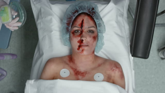 female trauma patient being prepared for a surgery - einatmen stock-videos und b-roll-filmmaterial