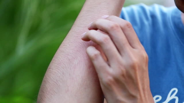 female's arm scratching. - allergy stock videos & royalty-free footage