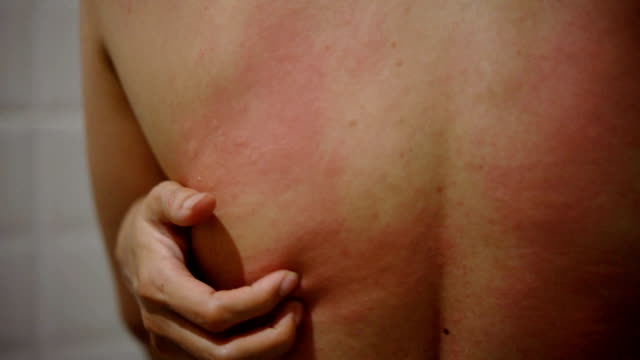 female's back scratching from hives. - scratched stock videos & royalty-free footage