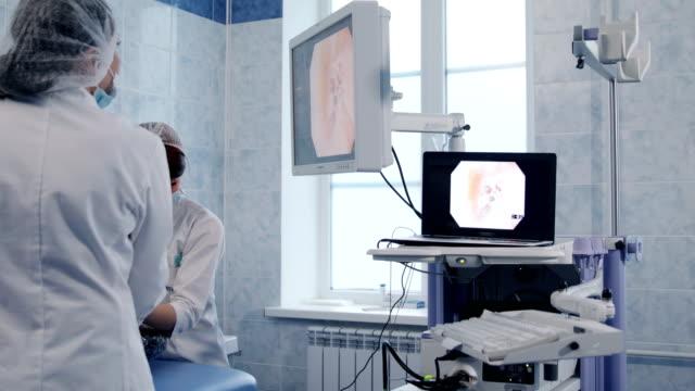 fiberoptiska gastroskopi processen på skärmen - människohals bildbanksvideor och videomaterial från bakom kulisserna