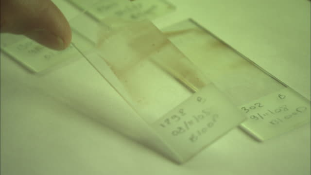 fingers pick up a glass specimen slide containing a blood sample. - microscope slide stock videos & royalty-free footage