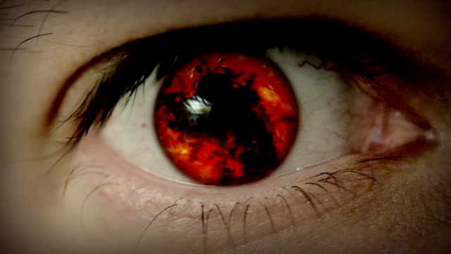Fire in eye