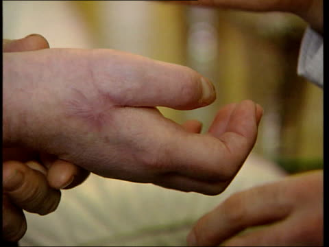 first recipient of hand transplant has hand removed tx north london int hallam sitting with nadey hakim as hakim inspecting his hand - itv weekend evening news stock-videos und b-roll-filmmaterial