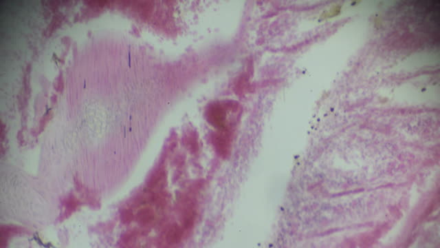 fish gill cross section in microscopy - gill stock videos & royalty-free footage