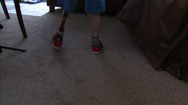 a five yearold boy who had to have his leg amputated when he got cancer has become the first youngster in britain to have a special kind of surgery... - prosthetic equipment stock videos & royalty-free footage