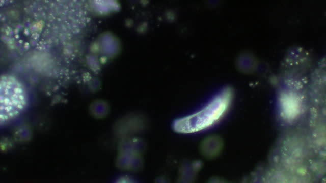 flagellate protozoan - flagello video stock e b–roll
