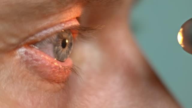 ECU Flashlight test being done on the eye
