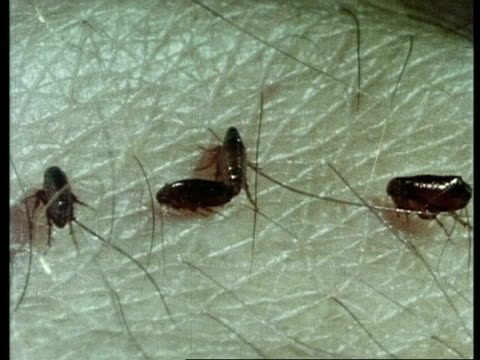 fleas on skin and bites, sequence, archive - flea insect stock videos and b-roll footage