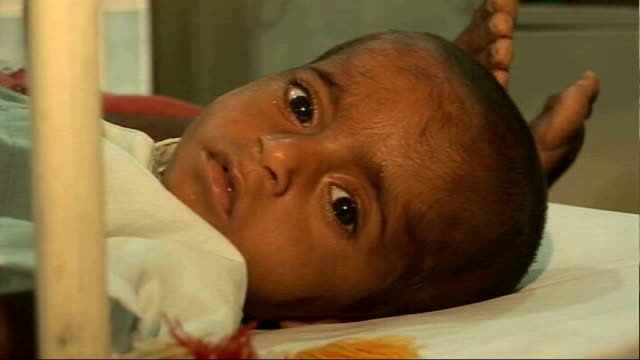 Charities warn of continuing crisis INT Sick child in hospital Doctors examing baby on bed and malnourished child with feeding tube on nose