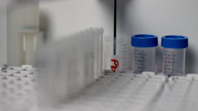 vídeos de stock e filmes b-roll de a forensic test is conducted on hair samples in test tubes in a modern lab - amostra médica