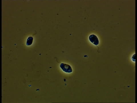 freshwater flagellate protozoans, flagella movement visible - animale microscopico video stock e b–roll