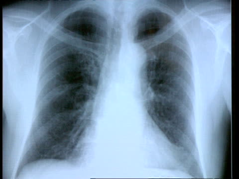 stockvideo's en b-roll-footage met cu full screen x-ray of chest - borstkas