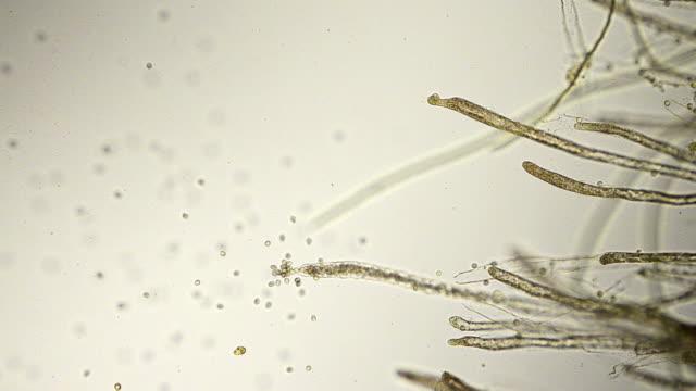 fungus spores micrograph