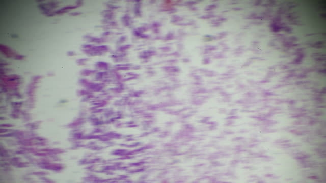 gastric adenocarcinoma (well diff. tubular adenocarcinoma) under light microscopy zoom in different areas - stain test stock videos & royalty-free footage
