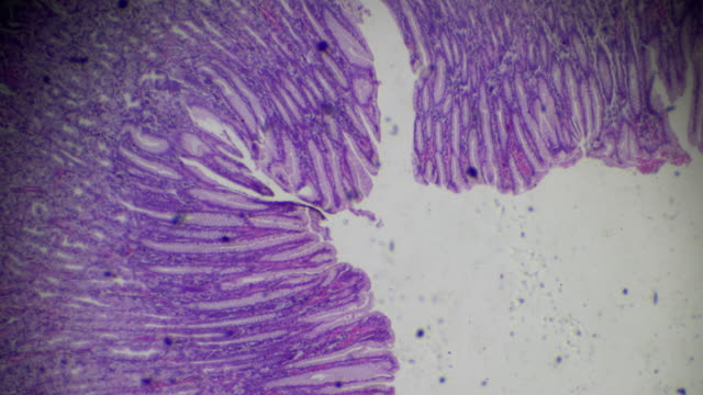 gastric mucosa intestinal metaplasia under microscopy - stain test stock videos and b-roll footage