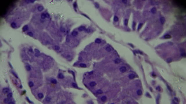 gastric mucosa intestinal metaplasia under microscopy - stain test stock videos & royalty-free footage