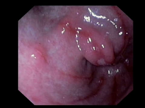 vídeos de stock, filmes e b-roll de gastritis. endoscopic view of inflammation of the stomach lining caused by the use of non-steroidal anti-inflammatory drugs.. - inflamação