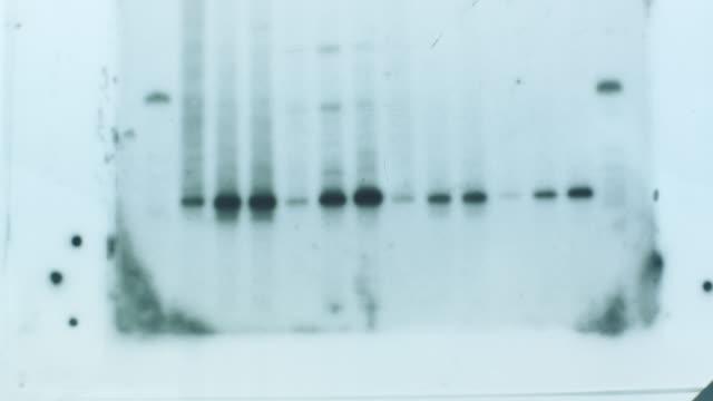 dna-ergebnisse zur dna-genanalyse zum covid-19-pandemievirus - wissenschaftliches experiment stock-videos und b-roll-filmmaterial