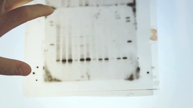 dna genetic analysis results - dna test stock videos and b-roll footage