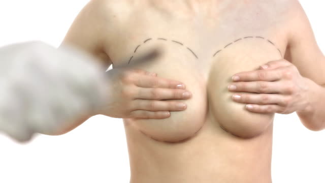hd: getting ready for breast implant - breast augmentation stock videos and b-roll footage