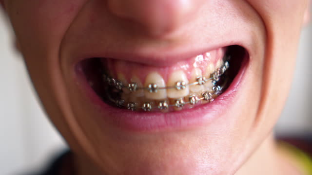 girl with retainer for teeth - brace stock videos and b-roll footage