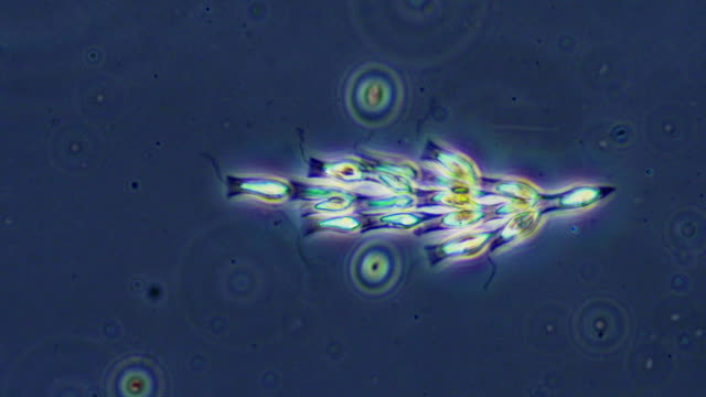 golden algae colony - microbiology stock-videos und b-roll-filmmaterial