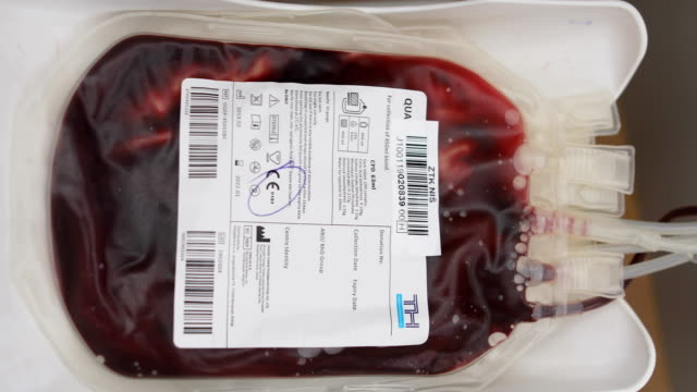 good deed.blood machine with blood bag from blood donors.benefits of donating blood for your body - blood bag stock videos and b-roll footage