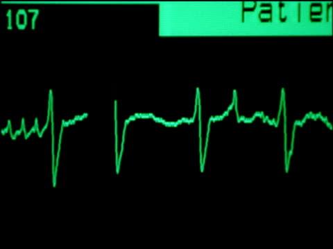EKG (heart monitor) graph of heart rate