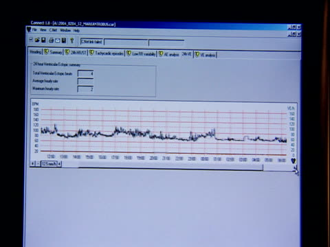 Graph plotting heart rate of patient displayed on monitor screen