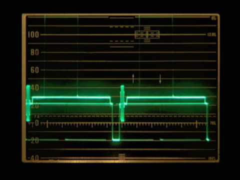 stockvideo's en b-roll-footage met graph showing green frequency patterns - graph