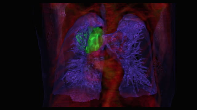 Graphic reconstruction of lung cancer