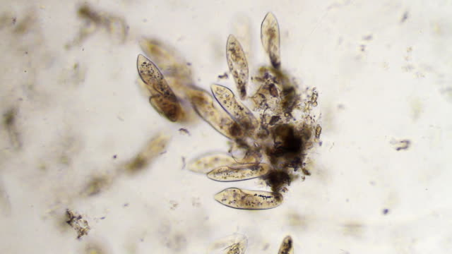 groupe di paramecium caudatums - micrografia video stock e b–roll